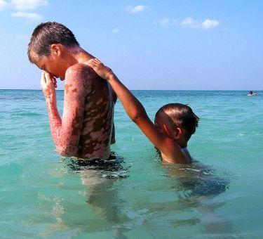 Niños ucranianos víctimas de la radiación de Chernóbil juegan en las aguas del Caribe como parte de su tratamiento.