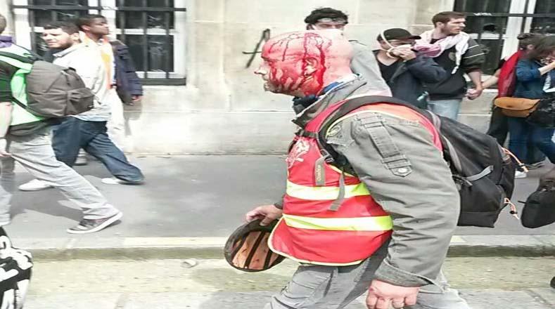 Tras ser víctima de represión policial, un hombre huye por las calles de París con el rostro ensangrentado.
