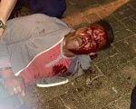 "The ABC's ""animalistic, insensitive, and brute handling"" of student Martese Johnson."