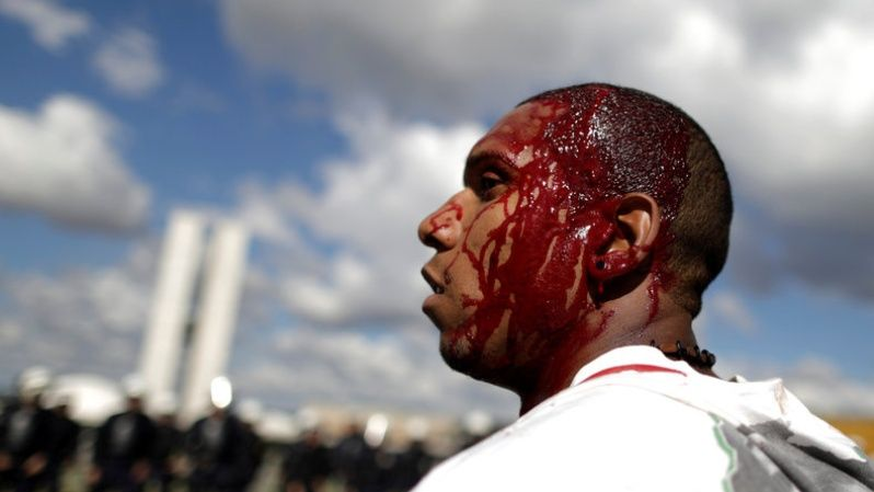 Demonstrator reacts after injuring his head during a protest against President Michel Temer and the latest corruption scandal to hit the country, in Brasilia