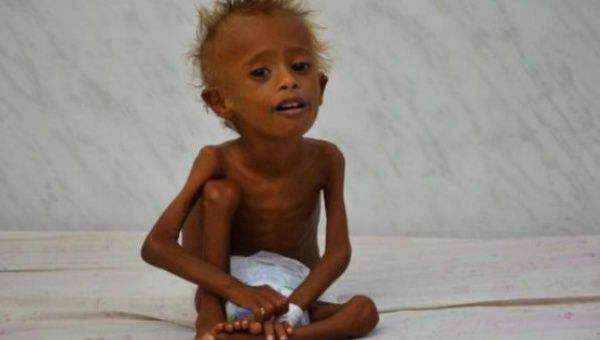 Salem Abdullah Musabih, 6, sits on a bed at a malnutrition intensive care unit at a hospital in the Red Sea port city of Hodaida, Yemen.