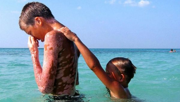 Vitali and Alexander, two Ukrainian victims of the nuclear plant meltdown in Chernobyl, play in Tarara beach, Cuba, nearby a pediatric hospital.