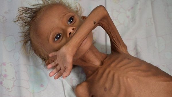 A malnourished boy lies on a bed at a hospital in the Red Sea port city of Houdieda, Yemen.