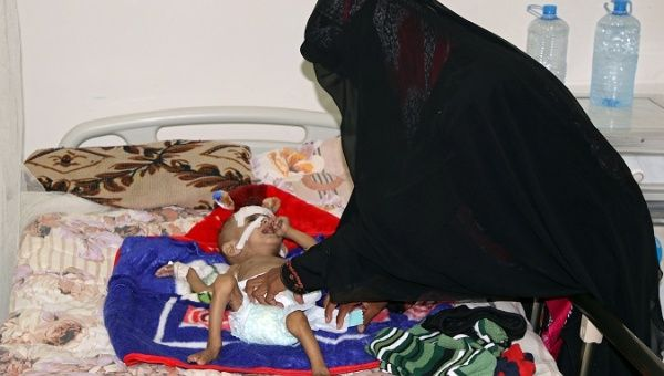 The mother of one-year-old Sameer al-Dhanbari, who suffers from severe malnutrition, helps him as he lies on a bed at a hospital in Houta city, Yemen Dec. 5, 2017.