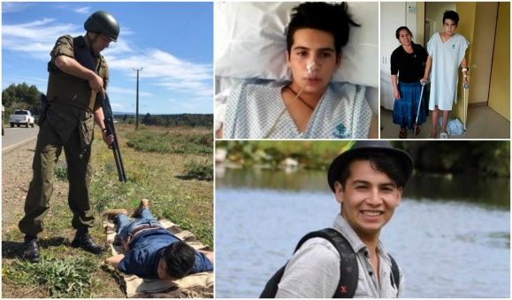 El joven logró sobrevivir con 30 perdigones alojados en su cuerpo, tras 45 días hospitalizado, 16 operaciones y una terapia para volver a caminar.