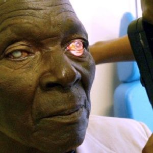 Rwanda has successfully provided universal eye care to all of its 12 million citizens, through a partnership between the government and the organization Vision for a Nation. In developing countries with poor access to eye-care, failing vision after age 45 can destroy the income of a family.