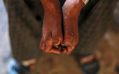 Leprosy is a skin disease which can be broken into two types, multibacillary and paucibacillary.