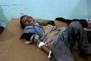 A Yemeni boy lies in the hospital after he was injured by an airstrike in Saada, Yemen.