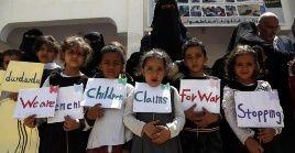Niños piden paz tras un bombardeo en Saná (Yemen) que dejó 13 muertos el lunes.