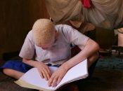 La ONU celebra cada 13 de junio el Día Internacional de Sensibilización sobre el Albinismo.